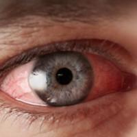 Olho seco: conheça as causas e os sintomas