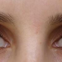 Saúde ocular: saiba como cuidar dos olhos
