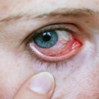 Artigo – Associação de ingestão de nitrato dietético com glaucoma primário