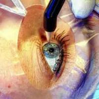 Idoso volta a enxergar após transplante de dente nos olhos