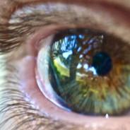 Pintas nos olhos? Manchas escuras na íris podem ser causadas pela exposição ao sol