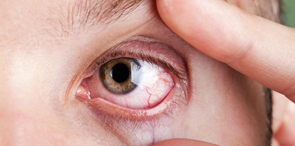 Sintomas de problemas de visão