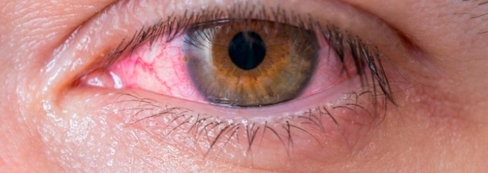 O que é a xeroftalmia e como identificar