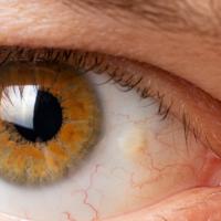 Pinguécula X Pterígio: você sabe a diferença entre essas doenças?