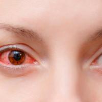 A conjuntivite pode ser um sintoma da Covid-19?