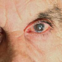 Mancha branca no olho: o que pode ser e quando ir ao médico?